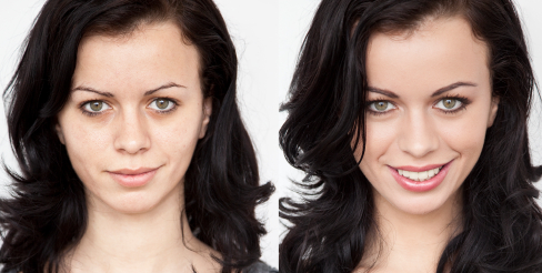 My Extreme Makeover: Before and After - Lies Young Women ...